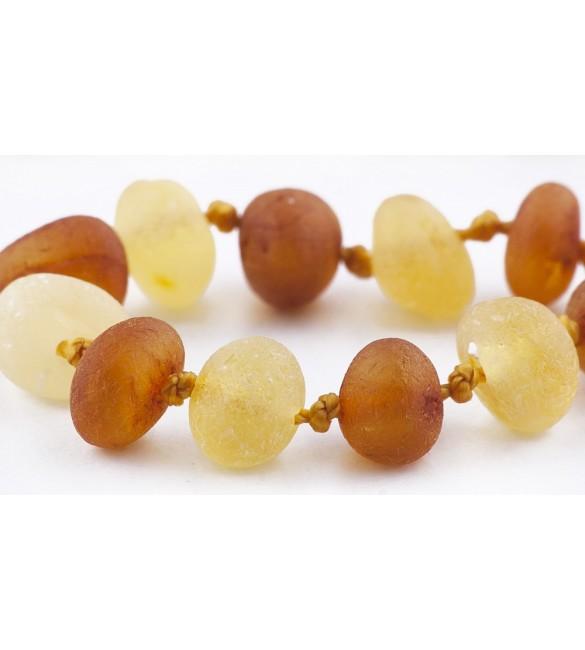 Amber Adult Bracelets Baroque Raw 1x1 Honey-Lemon