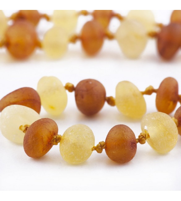 Amber Adult necklace Baroque Raw 1x1 Honey-Lemon